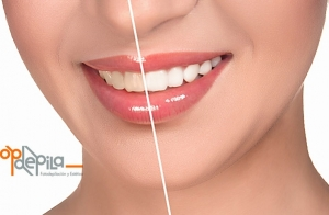 Blanqueamiento dental por luz LED